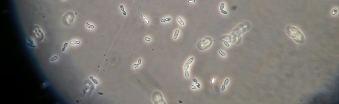 yeast under microscope