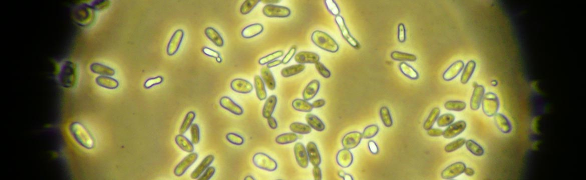 yeast-under-microscope